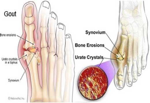 Bệnh gout ở bàn chân