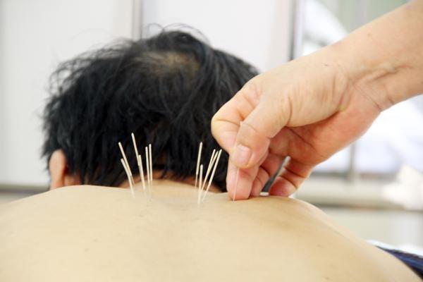 Phương pháp châm cứu chữa bệnh thần kì