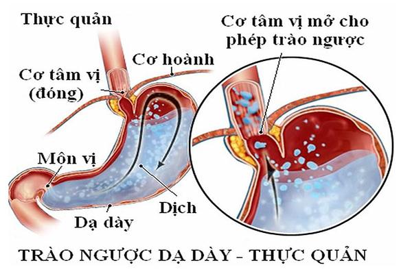 Triệu chứng bệnh trào ngược dạ dày thực quản và sản phẩm tinh bột nghệ